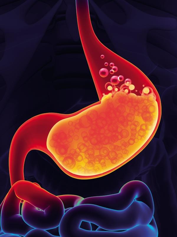 gastroesophageal%20reflux%20disease