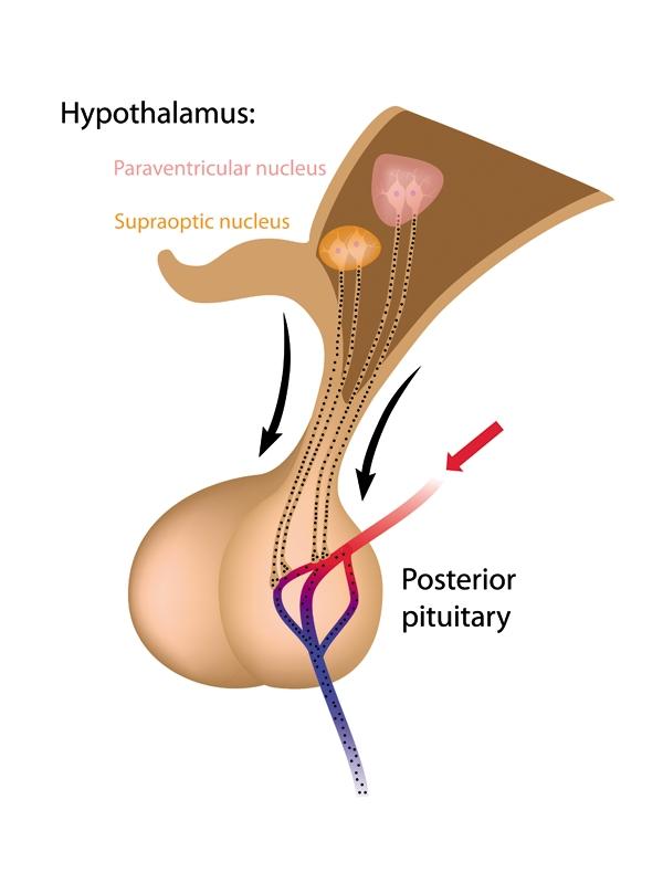 Hyperprolactinemia