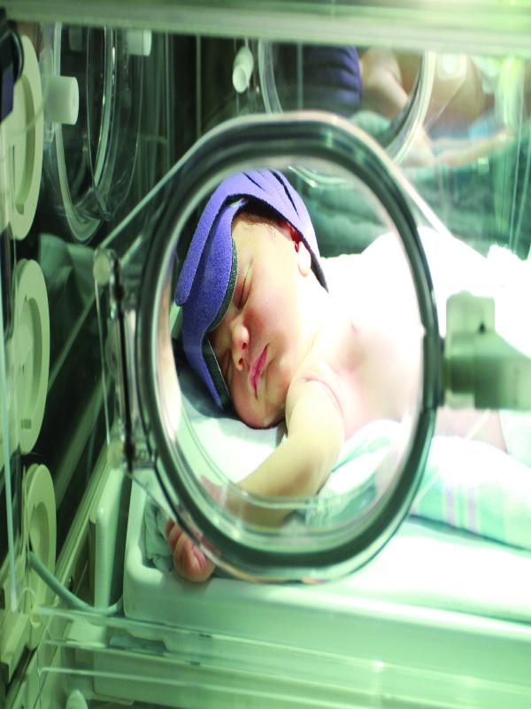 neonatal%20jaundice