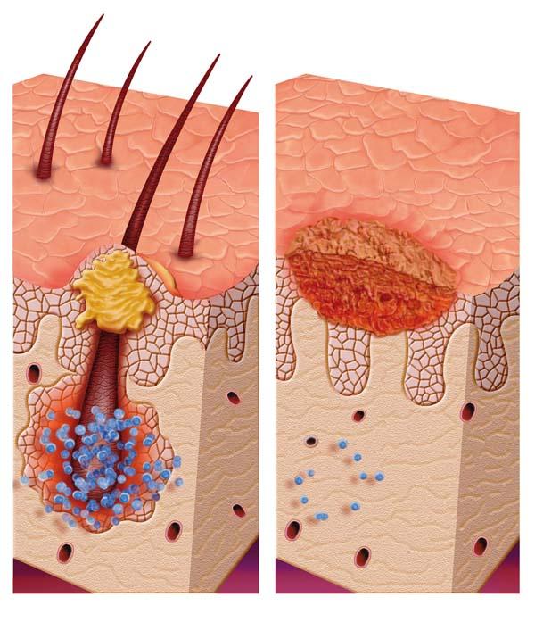Pityriasis (Tinea) Versicolor