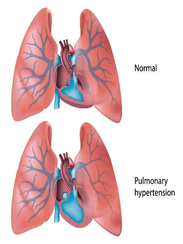 pulmonary%20arterial%20hypertension