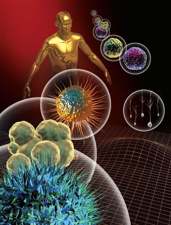 Rheumatic Fever - Acute