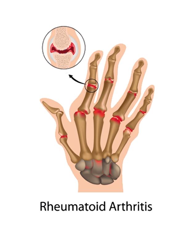 rheumatoid%20arthritis