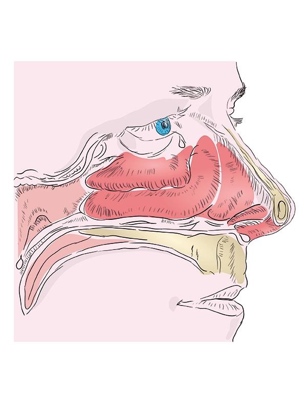 rhinitis%20-%20nonallergic