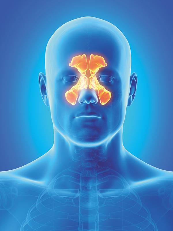 Rhinosinusitis - Acute, Bacterial (Pediatric)
