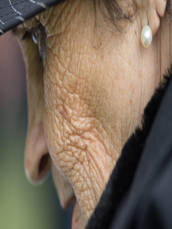 rhytides%20(wrinkles)