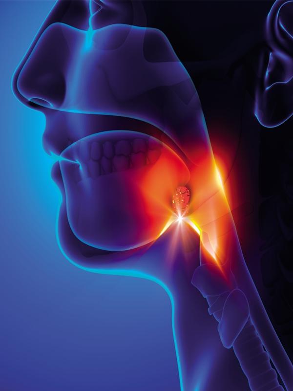 Tonsillopharyngitis - Acute