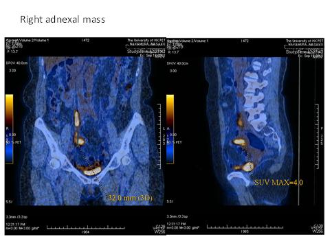 DRC ovarian cancer case 5 fig 2